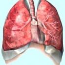 Клиническая картина пневмосклерозов